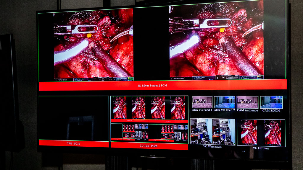 PSNC is a partner of the Live Surgery session during the 1st Symposium of the Robot Urology Section of PTU